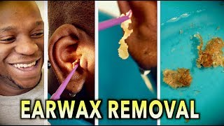 Download ENDLESS EARWAX REMOVAL! | Dr. Paul (feat. Themba ″my son″) Video