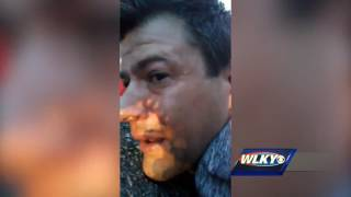 Download New Video of LMPD officer's confrontation after crash Video