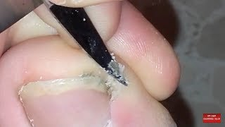 Download Routinary toenail cutting and cleaning. Video