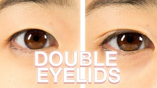 Download Koreans Get Double Eyelids For A Week Video