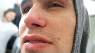 Download REMOVING HIS INFECTED PIERCING!! (HE CRIES!) Video