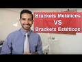 Download Brackets metálicos o estéticos. ¿Cuál es mejor? Video