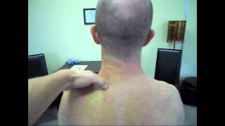 Download Neck Strain fixed with two Manual Therapy treatments Video