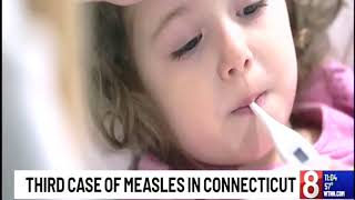 Download Dr. Jack Ross – WTNH, Ch. 8 – Measles Video