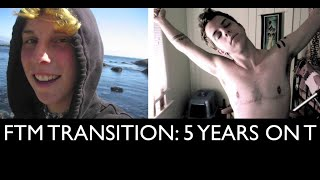 Download FTM Transition: 5 Years on Testosterone Picture/Timeline Video