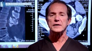 Download Epidural Steroid For Lumbar Spinal Stenosis Pros and Cons by Dr. Tony Mork Video