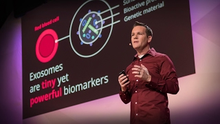 Download New nanotech to detect cancer early | Joshua Smith Video