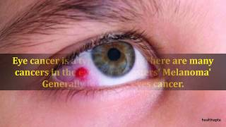 Download Symptoms of Eye Cancer Video