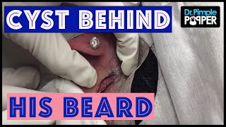 Download Was this a cyst that was squeezed repeatedly? Video