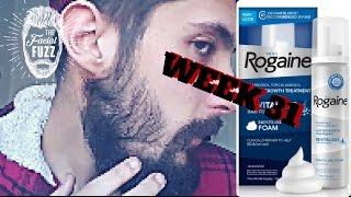 Download Minoxidil Beard | 7 MONTHS!!! | Week 31 | Minoxidil 5% for Beard Growth | #FacialFuzzFridays Video