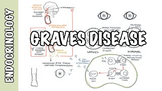 Download Graves Disease (DETAILED) - Overview Video