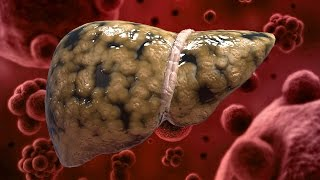 Download 6 Foods That Naturally Cleanse the Liver Video