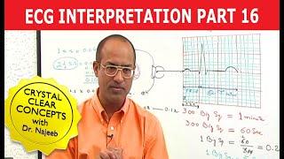 Download EKG or ECG Interpretation - Part 16/20 Video