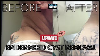 Download TBT: Cyst excision on Upper back with overlying tattoo: An update Video