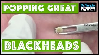 Download Plenty of Great Blackheads! Video