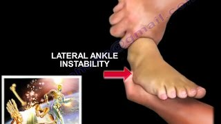 Download Chronic Lateral Ankle Instability - Everything You Need To Know - Dr. Nabil Ebraheim Video