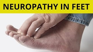 Download Peripheral Neuropathy Treatment | 9 Tips On How to Handle Neuropathy in Feet! Video