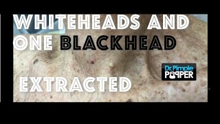 Download Whiteheads and one big blackhead extracted Video