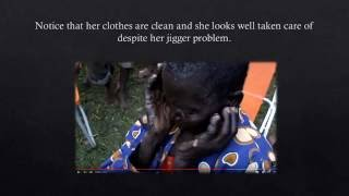 Download JIGGERS The Tragic Story of Luciana Video