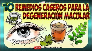 Download Degeneracion Macular | 10 Remedios Caseros para la Degeneracion Macular🧐🤓 Video