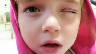 Download First Emergency Room Visit from a Gymnastics Injury Video