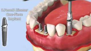 Download Zimmer One Piece Implant Video