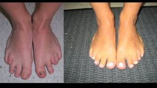 Download Limb Lengthening and Toe Lengthening with Dr. Rozbruch: Susan's Story Video