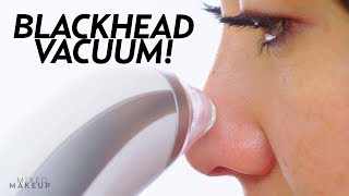 Download I Tried a Blackhead Remover Pore Vacuum! | Beauty with Susan Yara Video