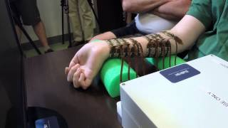 Download Paralyzed man moves his hand controlled by his own brain for the first time. Video