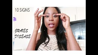Download Ten signs and symptoms you have Graves Disease. Video