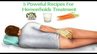 Download 5 Powerful Recipes For Hemorrhoid Treatment Video