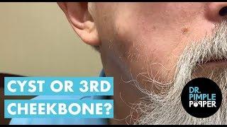 Download No One Needs Three Cheekbones Video