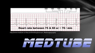 Download How to read an ECG easily Video