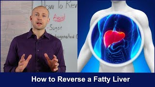 Download How to Reverse a Fatty Liver | Untold Secrets Video