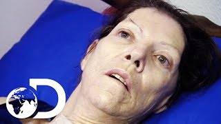 Download Miracle Drug Wakes Up Woman In A Coma After 2 Years | My Shocking Story Video