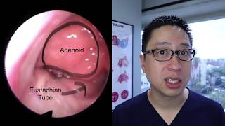 Download Adenoids and Adenoidectomy: what are they, when do we remove them, what is the surgery like Video