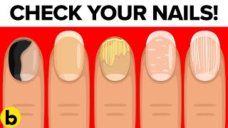 Download 8 Things Your Nails Can Tell You About Your Health Video