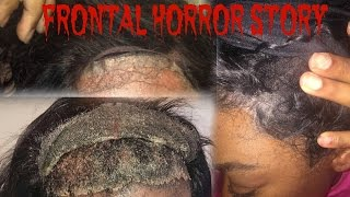 Download Lace Frontal HORROR STORY| Storytime Video