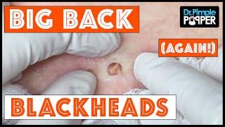 Download The Third Return of Big Back Blackheads! Dr Pimple Popper Video