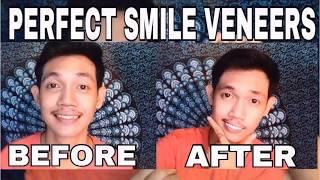 Download VENEER GIGI MURAH || PERFECT SMILE VENEERS Video
