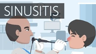 Download What is Sinusitis? Video