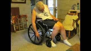 Download Neuro movie for Alvin Multiple System Atrophy Video