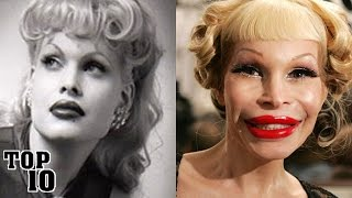 Download Top 10 Extreme Plastic Surgery Disasters - Part 2 Video