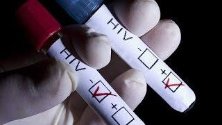 Download Những dấu hiệu, triệu chứng của bệnh HIV giai đoạn đầu (ở nam giới) Video