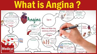 Download [CVS] 16- What is Angina Pectoris ? Types of Angina, Symptoms, Causes, and Treatment Video