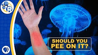 Download Should You Pee on a Jellyfish Sting? Video