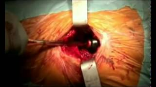 Download Live Surgery Total Hip Replacement Video