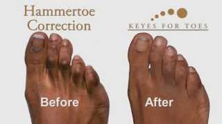 Download Advanced Toe Corrections - Wear your favorite shoe wear! Video