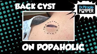Download Back Cyst on a Popaholic... baby! Video