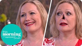 Download I Lost My Nose to an Autoimmune Disease and Now My New One Is Held on With Magnets | This Morning Video